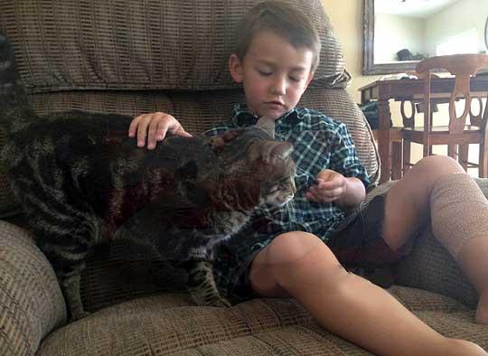 Кошка спасла четырехлетнего мальчика от нападения соседского пса фото